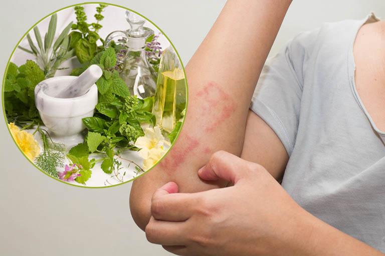 cách giảm ngứa khi bị dị ứng