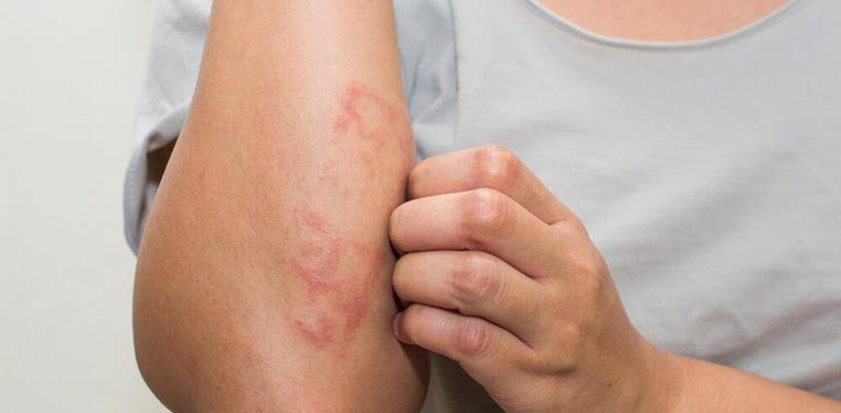 Tác dụng phụ cồn ASA trị hắc lào, nấm da