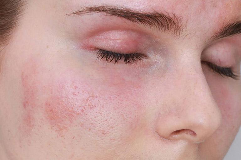 Da mặt bị đỏ và rát là bệnh gì?