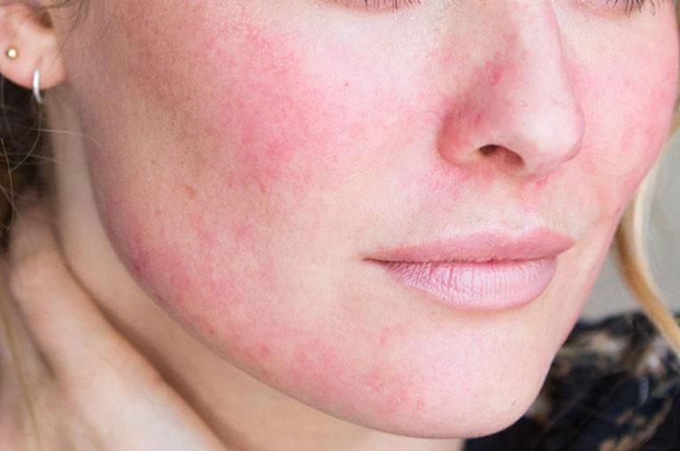 Khắc phục tình trạng da mặt bị đỏ và rát