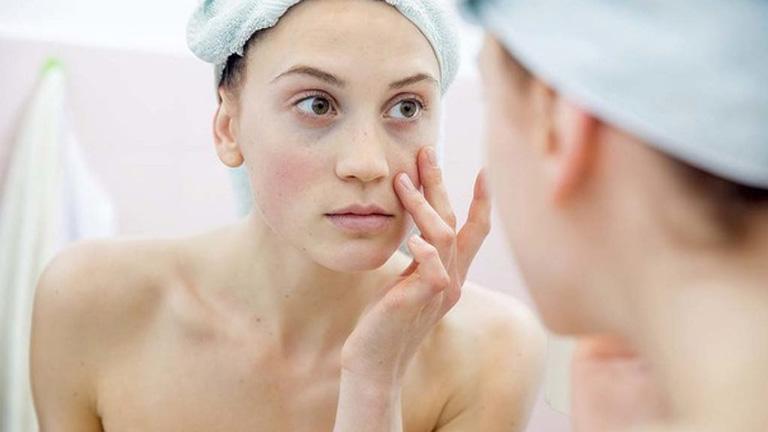 Cách khắc phục da mặt bị khô sần và ngứa