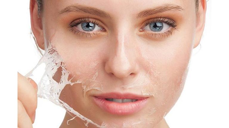 Biểu hiện da mặt bị khô sần và ngứa