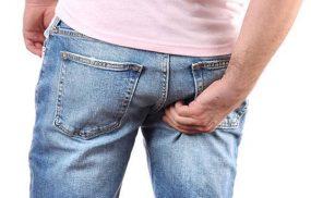 Hắc lào ở mông: Thuốc trị và phòng ngừa bệnh tái phát