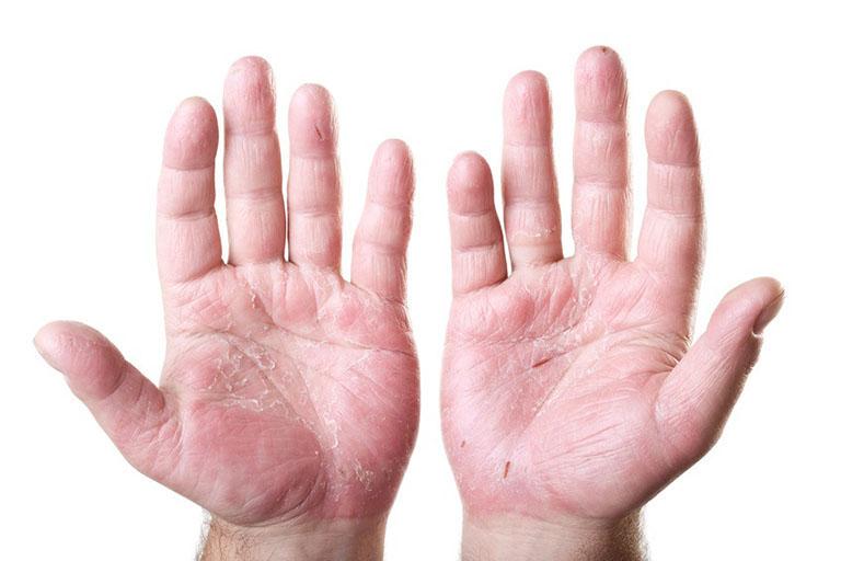 nấm da tay chân