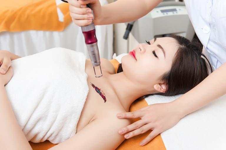 Top 10 địa chỉ xóa xăm bằng laser uy tín không đau tại TPHCM