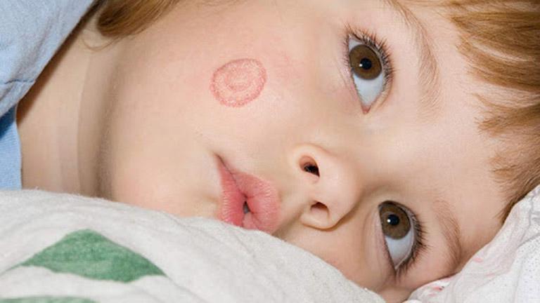 Điều trị bệnh hắc lào ở trẻ sơ sinh