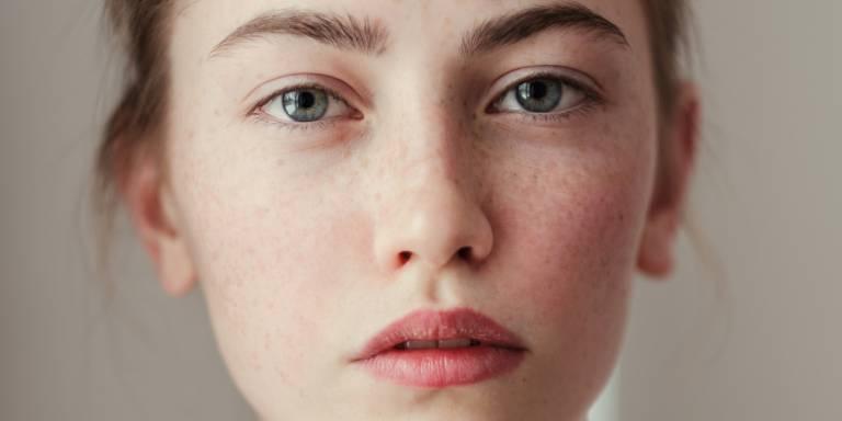 Viêm da tiếp xúc dị ứng ở mặt: Cách xử lý và phòng ngừa