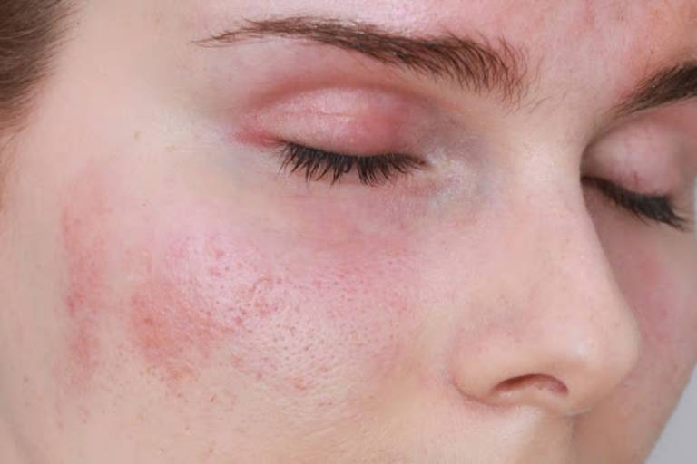 Dấu hiệu bệnh viêm da tiếp xúc dị ứng ở mặt