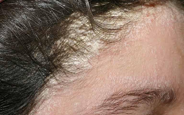 Viêm da tiết bã nhờn da đầu