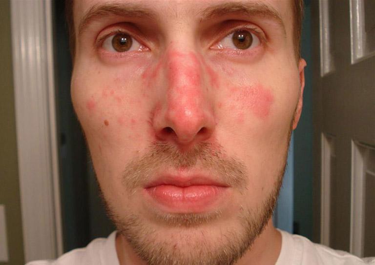 Nguyên nhân gây viêm da tiết bã ở mặt