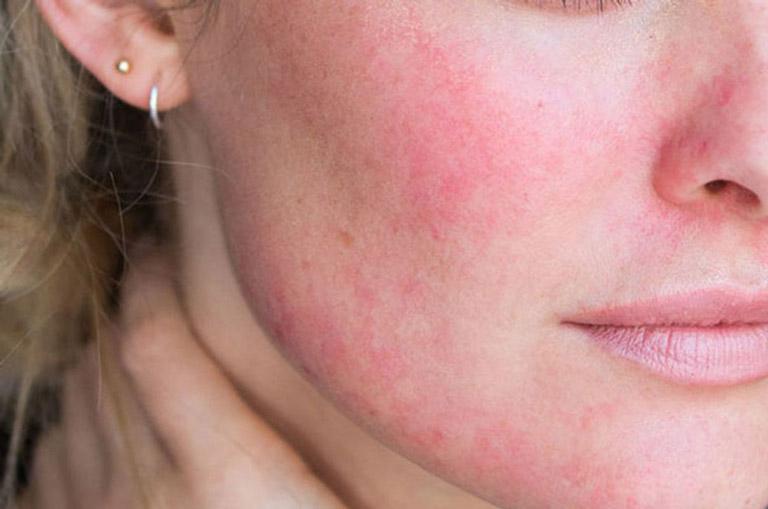 Biểu hiện của viêm da tiết bã ở mặt