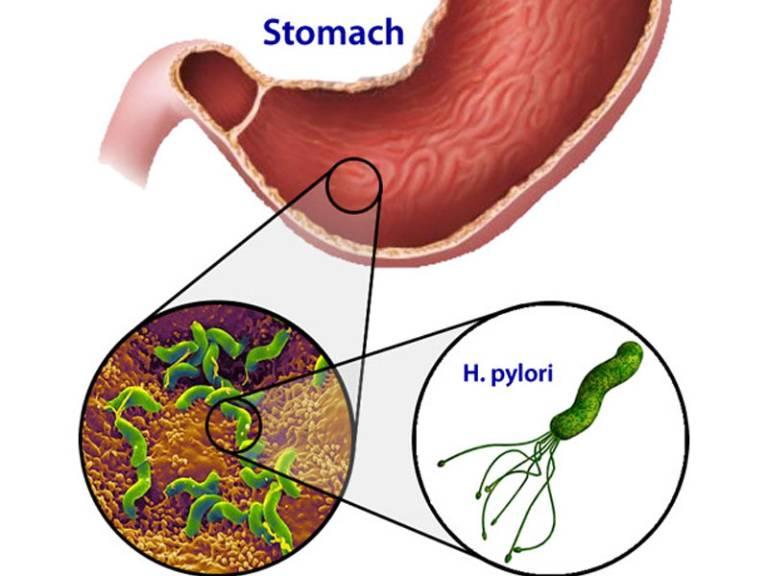 Nguyên nhân dẫn đến viêm hang vị dạ dày
