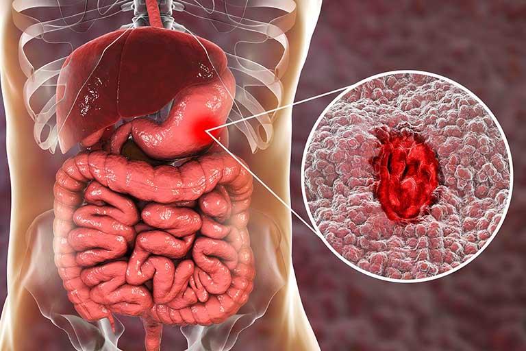 Xuất huyết dạ dày là gì?
