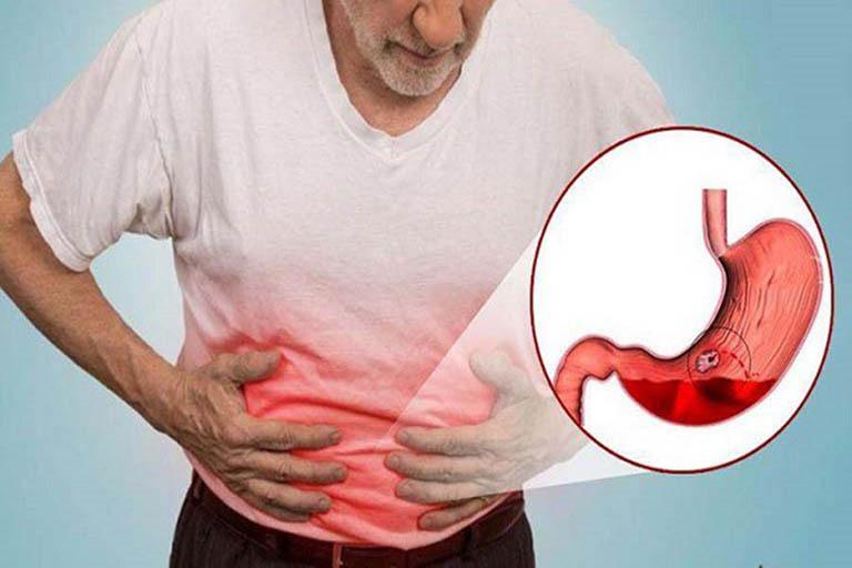 Sơ cứu và điều trị xuất huyết dạ dày