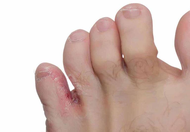 Một số bệnh nấm da thường gặp và cách nhận biết