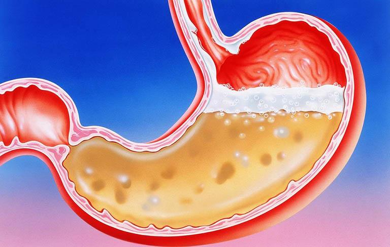 Chế độ ăn uống và lối sống tác động thế nào đến axit dạ dày