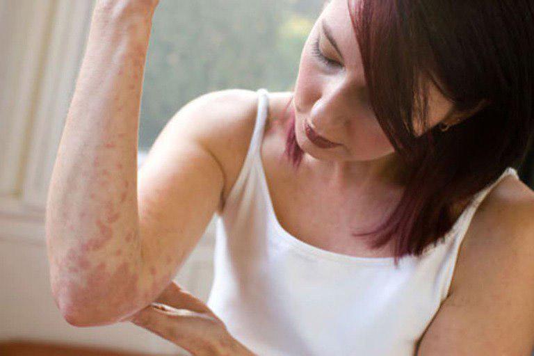 Một số lưu ý khi dùng cây lược vàng chữa viêm da cơ địa