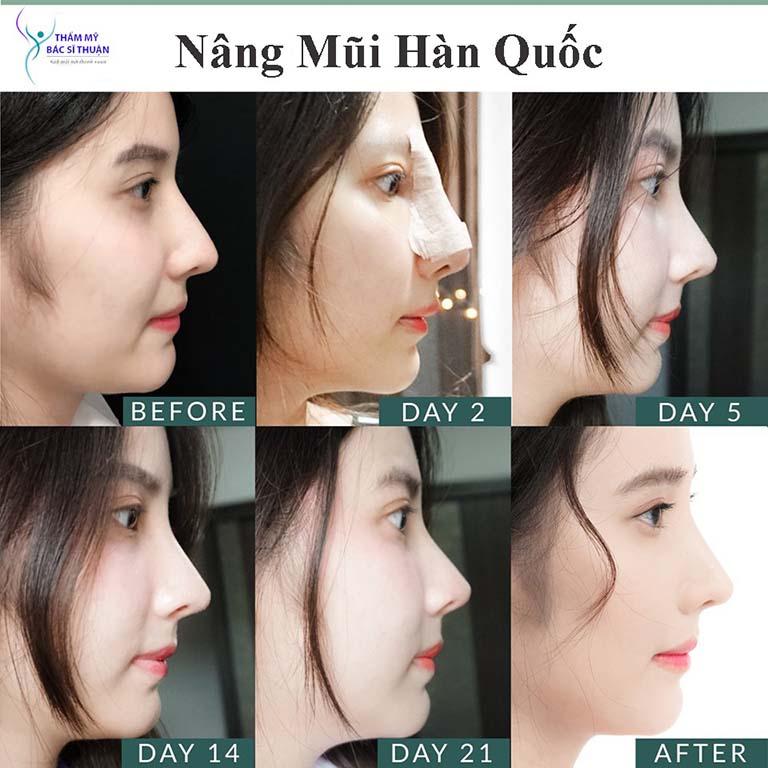 chỉnh hình đầu mũi, sửa mũi tại TPHCM