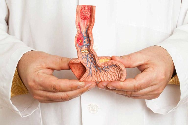 chữa yếu sinh lý bằng phẫu thuật