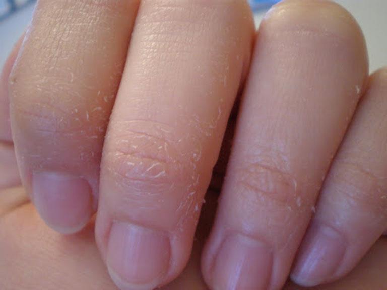 Da tay bị bong tróc và ngứa nên làm thế nào?