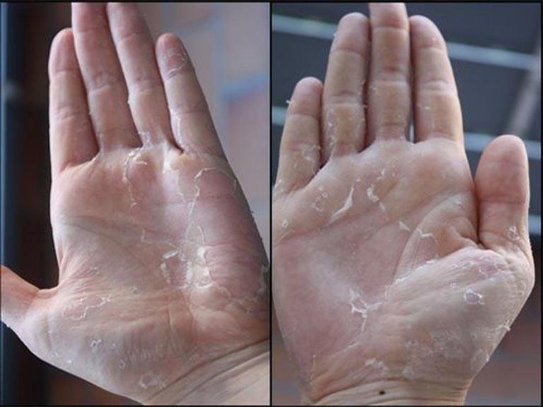 Lưu ý khi da tay bị bong tróc và ngứa