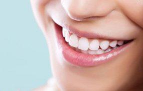 Top 10 địa chỉ bọc răng sứ uy tín giá rẻ tại Hà Nội