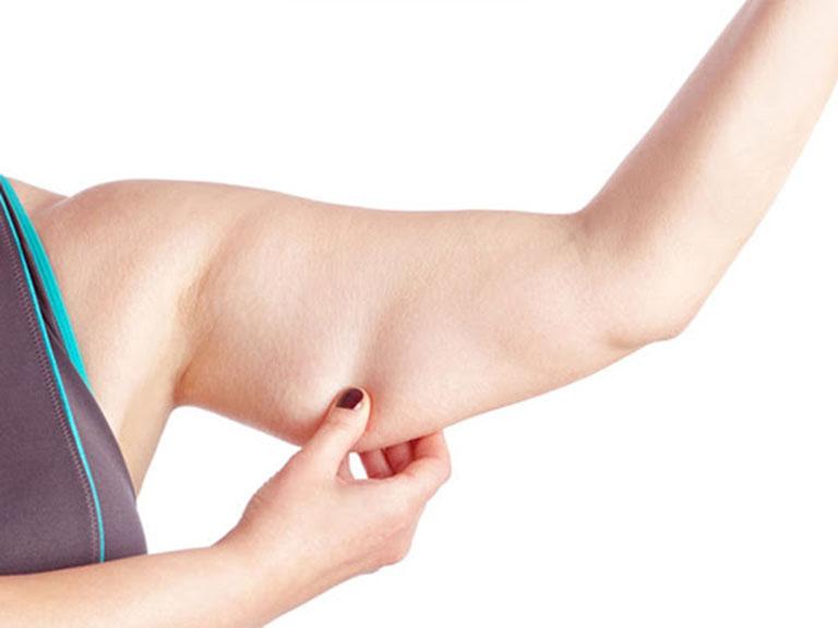 hút mỡ bắp tay tại tphcm