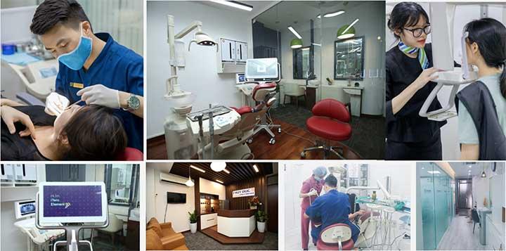 Nha khoa thuý đức niềng răng tại Hà Nội uy tín nhất