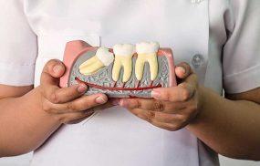 nhổ răng khôn tại Hà Nội