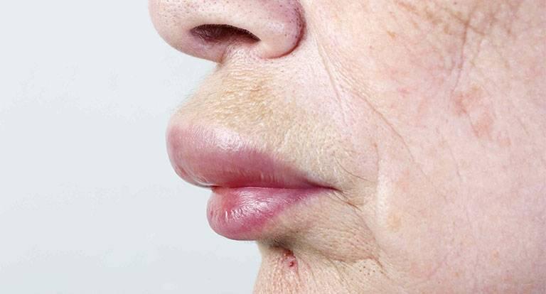 Nổi mề đay sưng môi là do đâu? Cách xử lý hiệu quả