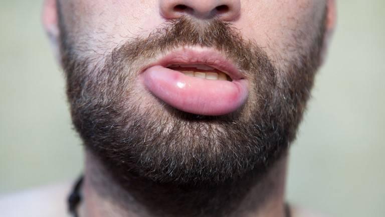 Nguyên nhân dẫn đến nổi mề đay sưng môi