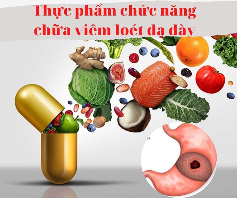 Thực phẩm chức năng chữa viêm loét dạ dày