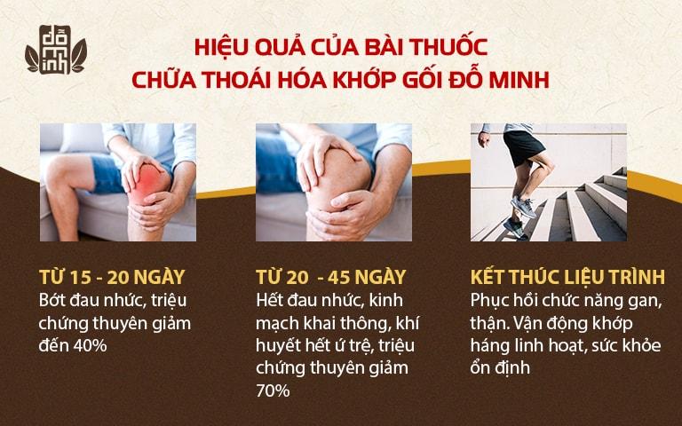 Kết quả dùng thuốc điều trị thoái hóa khớp gối của Đỗ Minh Đường