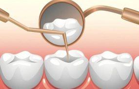 9 địa chỉ trám răng thẩm mỹ tại Hà Nội có giá và dịch vụ tốt