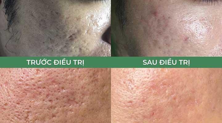 Trước và sau khi điều trị sẹo tại TPHCM
