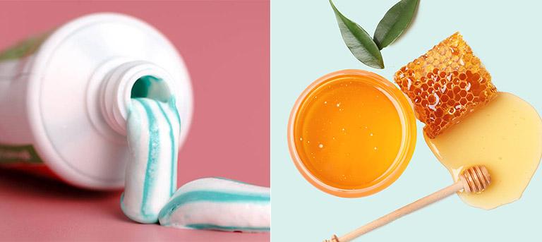 cách trị mụn bằng nha đam và kem đánh răng