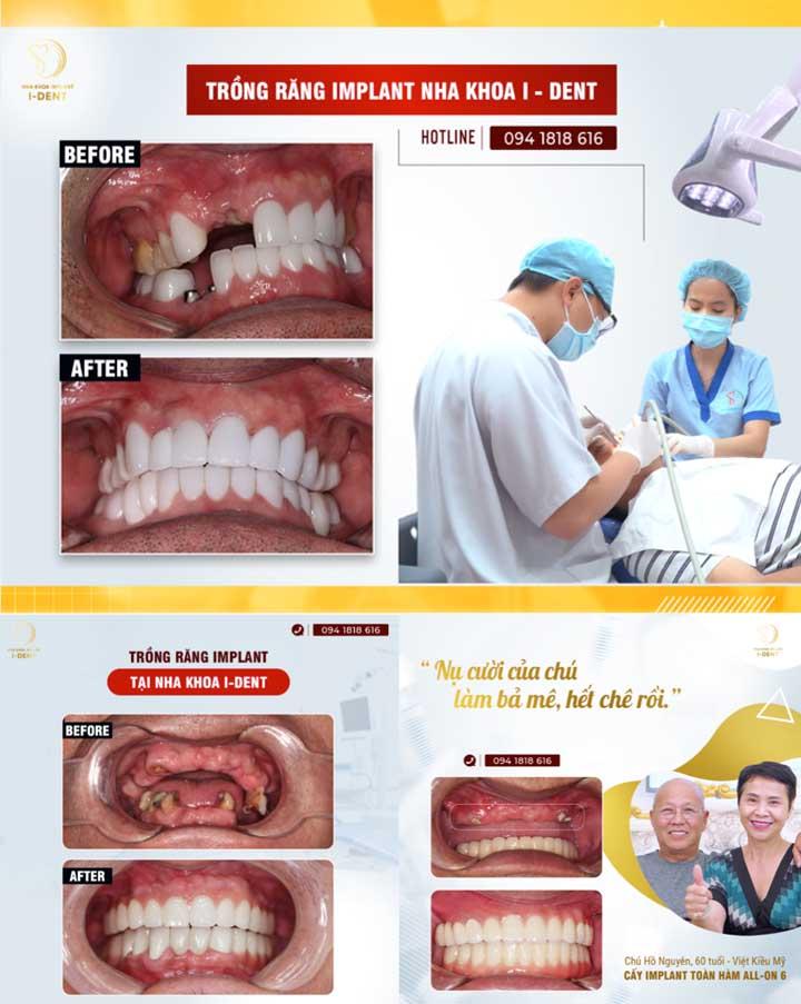 Cấy ghép răng implant nha khoa ident TPHCM
