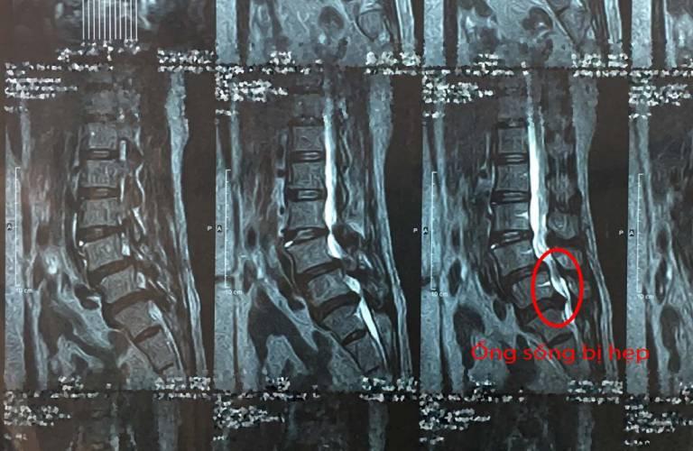 Một số hình ảnh thoát vị đĩa đệm được chụp cộng hưởng từ MRI