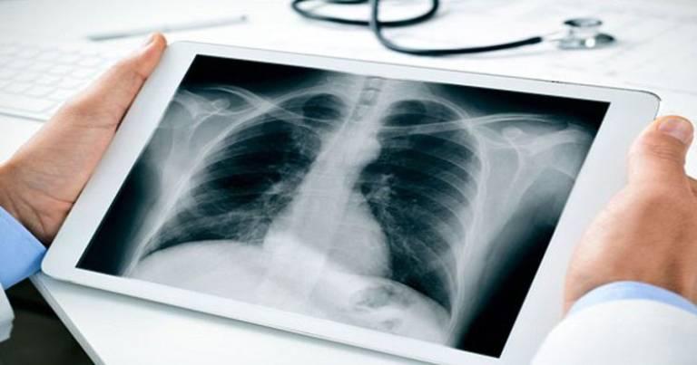 Chụp x quang có phát hiện thoát vị đĩa đệm không? [Giải đáp]