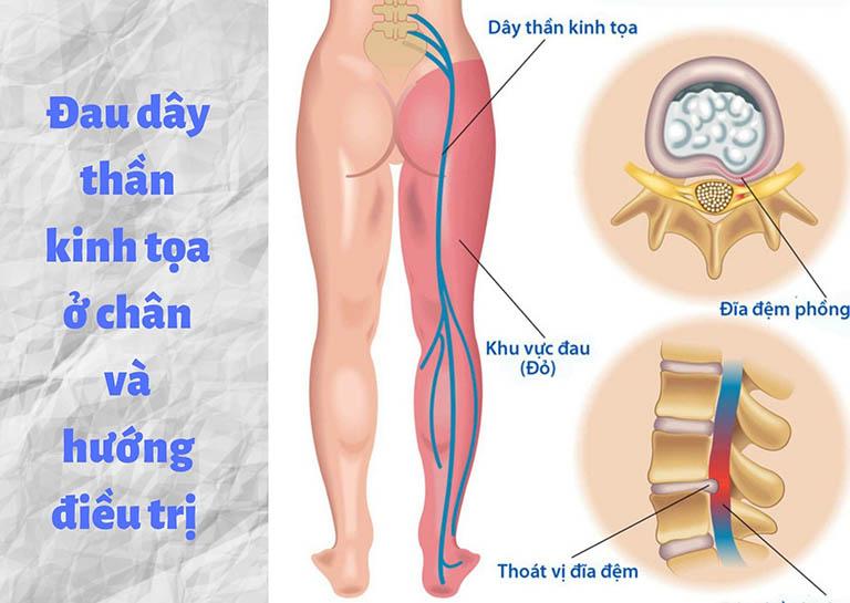 Đau dây thần kinh tọa ở chân