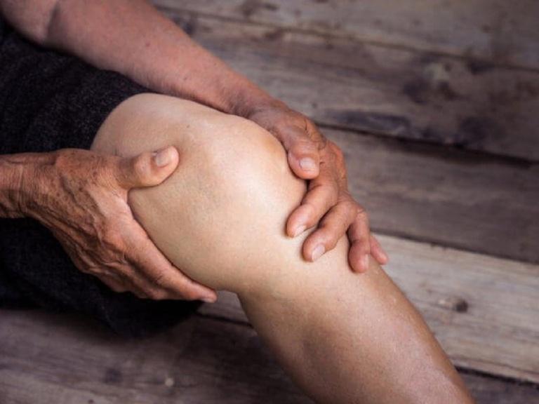 Bệnh viêm khớp dạng thấp trong quan niệm Đông y