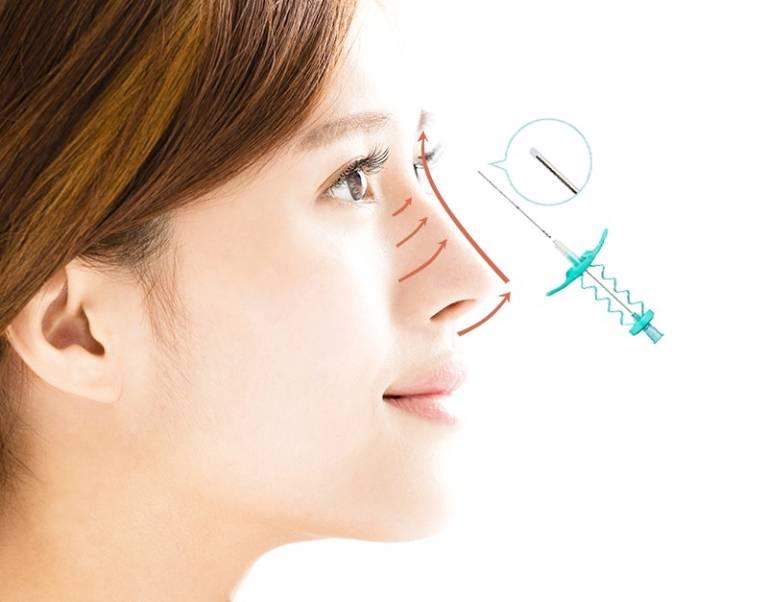 Nâng mũi chỉ: Phương pháp nâng mũi tiềm ẩn nhiều nguy hiểm