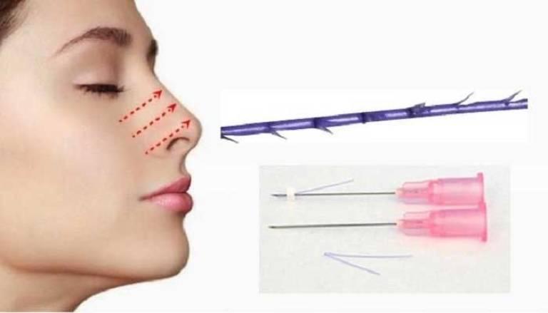 Phương pháp nâng mũi chỉ nguy hiểm không?