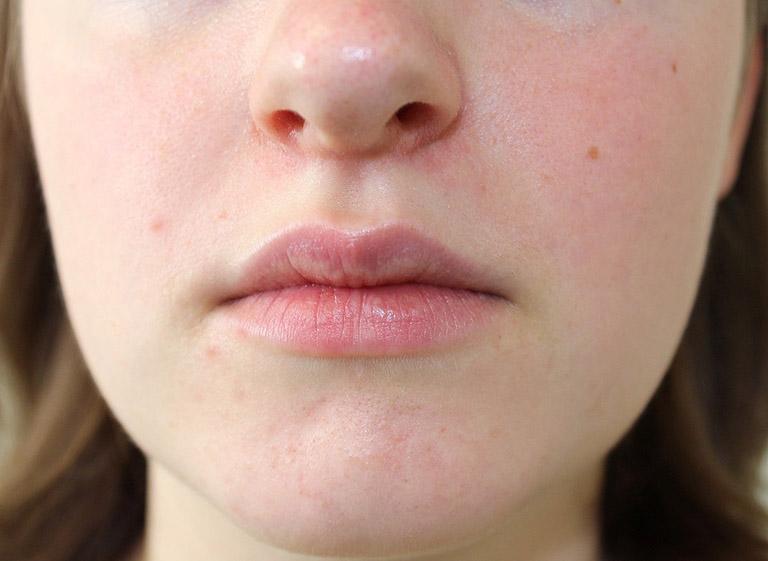 Các phương pháp nâng mũi không phẫu thuật