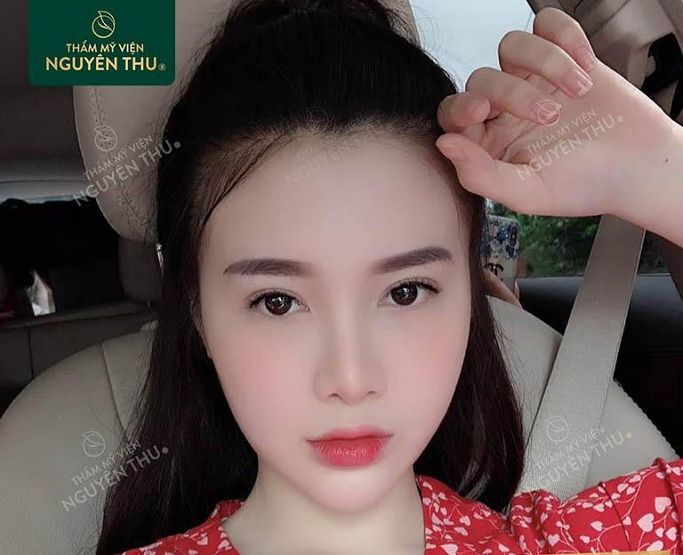 nâng mũi đẹp tại Đà Nẵng