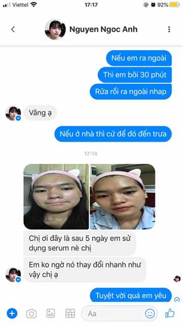 Review trị mụn Clean acne 3S