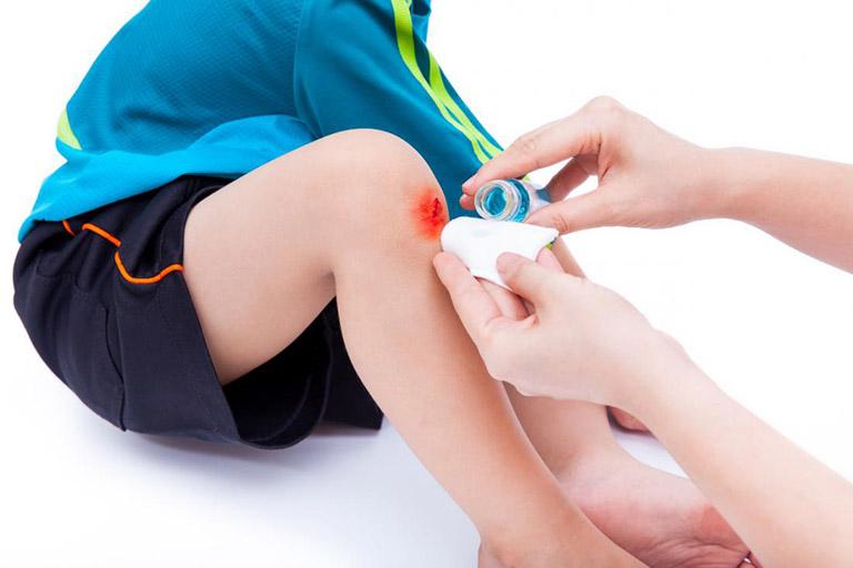 Tràn dịch khớp gối ở trẻ em