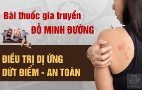 Bài thuốc Mề đay Đỗ Minh chữa dị ứng nổi mề đay hiệu quả và an toàn