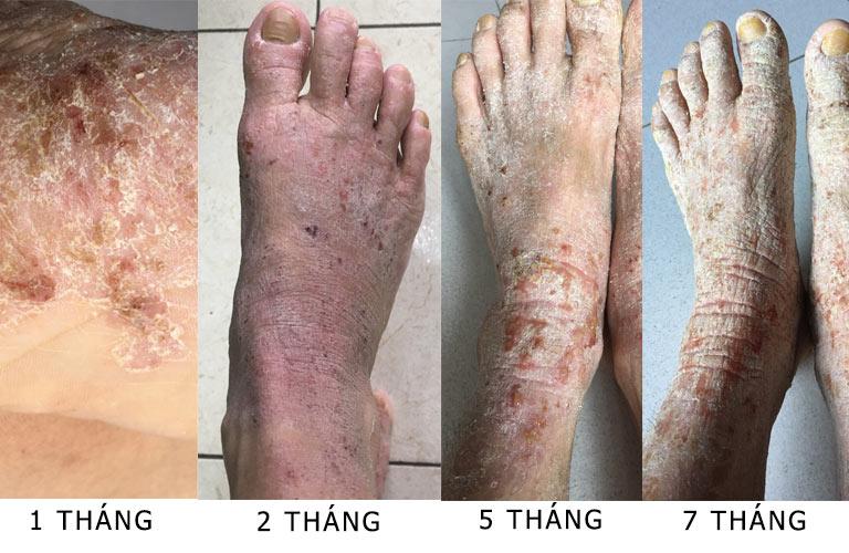 Hình ảnh tình trạng viêm da cơ địa của chị Diễm Thu