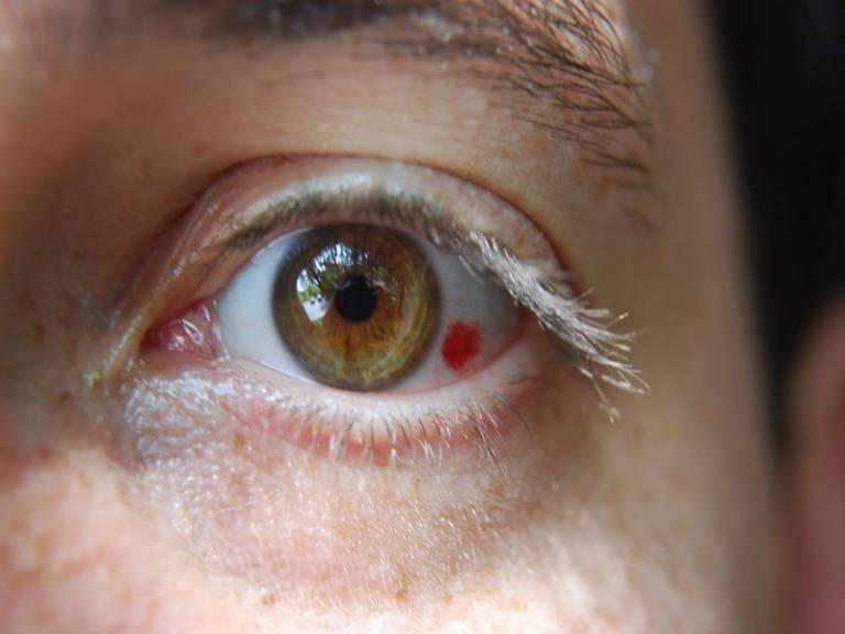 Biến chứng về mắt